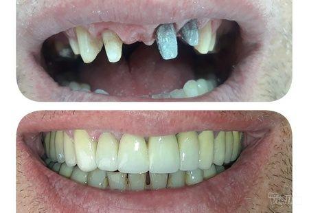 Metalo keramički most Dental Step