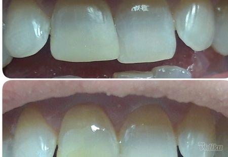 Kompozitna nadogradnja zuba