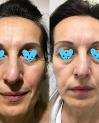 Nehirusko zatezanje lica