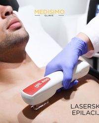 Laserska epilacija grudi