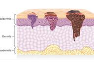 Kako dermatolozi mogu da vam pomognu od neželjenih posledica lečenja od raka