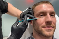 Botox za muškarce u dermatološkoj ordinaciji