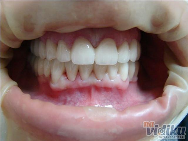 Medicinska pasta za zube lacalut