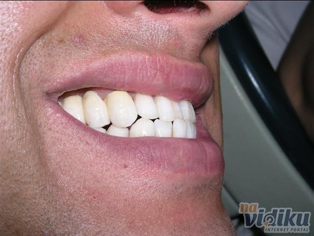 Zubar markovic novi beograd